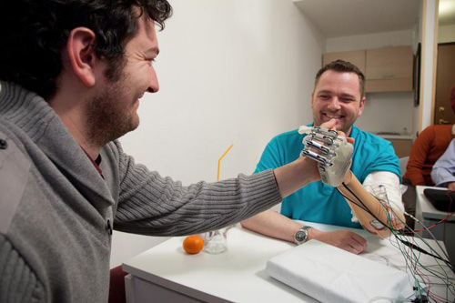 Prosthetic Hand With Sense Of Touch