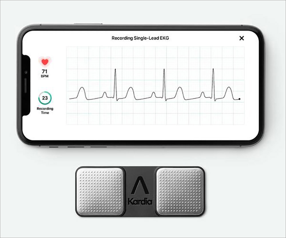 Alivecor-KardiaMobile-EKG-Monitor