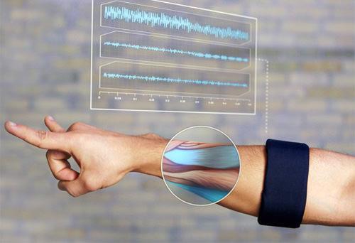 Myoelectric Armband
