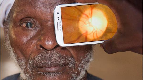 scan eye kenya